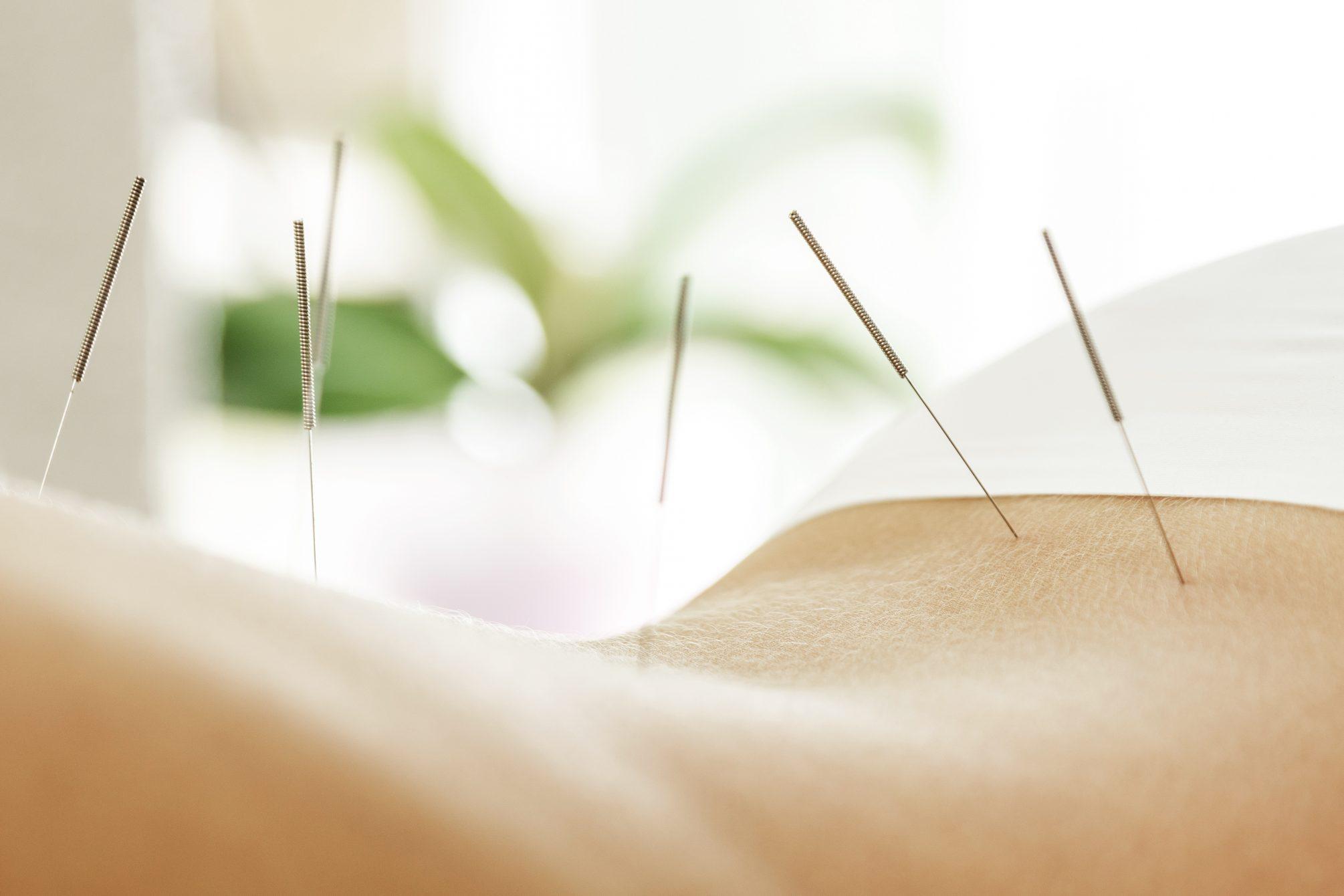 L'acupuncture stimule la fertilité lors du syndrome des ovaires polykystiques
